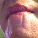 Scar lower lip to center chin