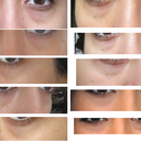 Photos of the under eye area in different lights and angles. The last 2 on the left side are ones with makeup, which you can see does not help with hollows.