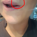 Lump above lip