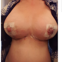 Day 1 post op Mastopexy with 550cc implants.