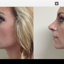 the first photo is how I look now and the second is a simulation with a rhinoplasty and chin implant