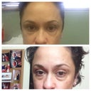 That last pic was the before and after the 1st time..... And this dr is the best in st Louis mo