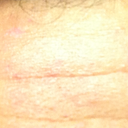 Left side of the pic is the scar.