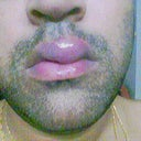 LIPS swelling nothing bites, little bit itchy during starting time.