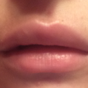 Here is my lip right after adding a syringe of Juvederm with the implant already in. Why does it look this way??? Will my lips go back to normal after the filler dissolves or should I get the implant removed?