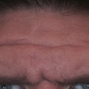 strong glabella and forehead