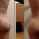 2 weeks v. 5 weeks post op - healing process going well. Endermology worth it?
