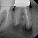 Current stage of tooth with infection