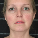 Neck lift, Brow lift, Face lift, Blepharoplasty, Tear trough deformity, Volume loss