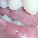 Staining on premolar