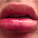 Lips after: ~ 9:30 p.m. evening of injection, swelling very bad, bruising bad, lips not uniform in shape, bruising mostly to right lower side. Took 800 mg. Advil ~ 8:00 p.m. for swelling.