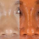 African American Rhinoplasty image