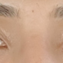 Right eyelashes flare up. Left eyelashes point downwards like they did prior to surgery.