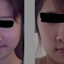 Face less taut despite not having lost or gained weight.