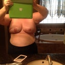 Front view, after breast reduction