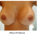 i know they say 650 cc, but i am wondering if i can acheive this look with a smaller implant because I have a small frame?