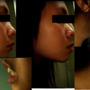 Overbite pictures including comparison between profile & jaw held forward