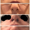 Up : nose before surgery