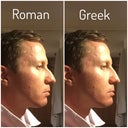 Does a Greek nose look any better than a Roman one?