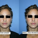 The left side is my nose BEFORE surgery. 