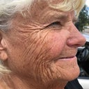 Charlene, age 72 before scheduled C02 facial surgery