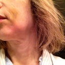 jowl from Radiesse or is it due to swelling?