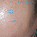 Dilated capillareis on scalp