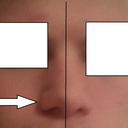 As you can see my nose is a little crooked and my right nostril is in a different shape then my left. I want my right nostril to be like my left