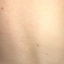 Mole on spine