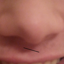 Also the part between my nostrils (columella i think it is called?) is not straight. When I smile this is more highlighted.