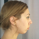 Current chin, 2 months post removal