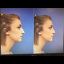 open rhinoplasty computerised result