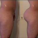 Left current, right ideal -- that is the size of my butt, I haven't retouched it, just took in the top and lower portions of body fat.