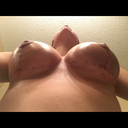 18 days post op