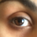desperate need of orbital fat grafting to the upper eye lid (also lower too)