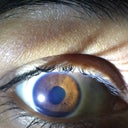 Right eye with pupil not recovered o its normal position after Epi LASIK