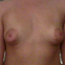 Breasts front view