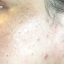 pimples and darker hyperpigmentation