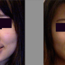 Face rounded by sagging skin. 1 month difference between these photos.