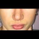 this is my nose after the surgery