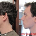 Jaw in normal position (left), and pushed forward (right)