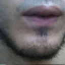 this is how it looks when lips at rest (lower lip is so pulled down)