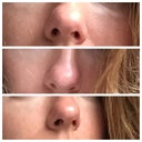 Bulbous tip with a bump? How can my nose be made to look more appealing?