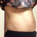 Fat on sides and lower stomach fat