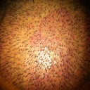 Day 9. You can see small drops of oil on my HT scalp.