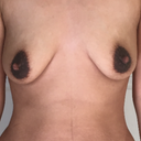 Do I need breast lift or only implants?