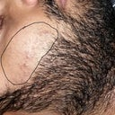 right beard hair