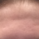 Is it fat below my forehead skin making it loose?