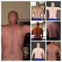 The 2nd row (to the right) is before, the remaining are after 3-months (post 2nd surgery)