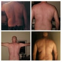The top-left is before, the remaining are after 3-months (post 2nd surgery)